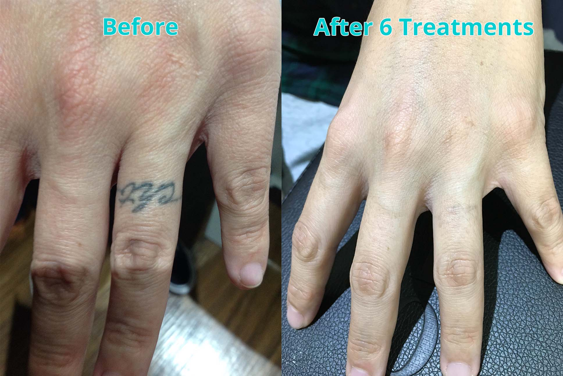 Before and After 6 Treatments
