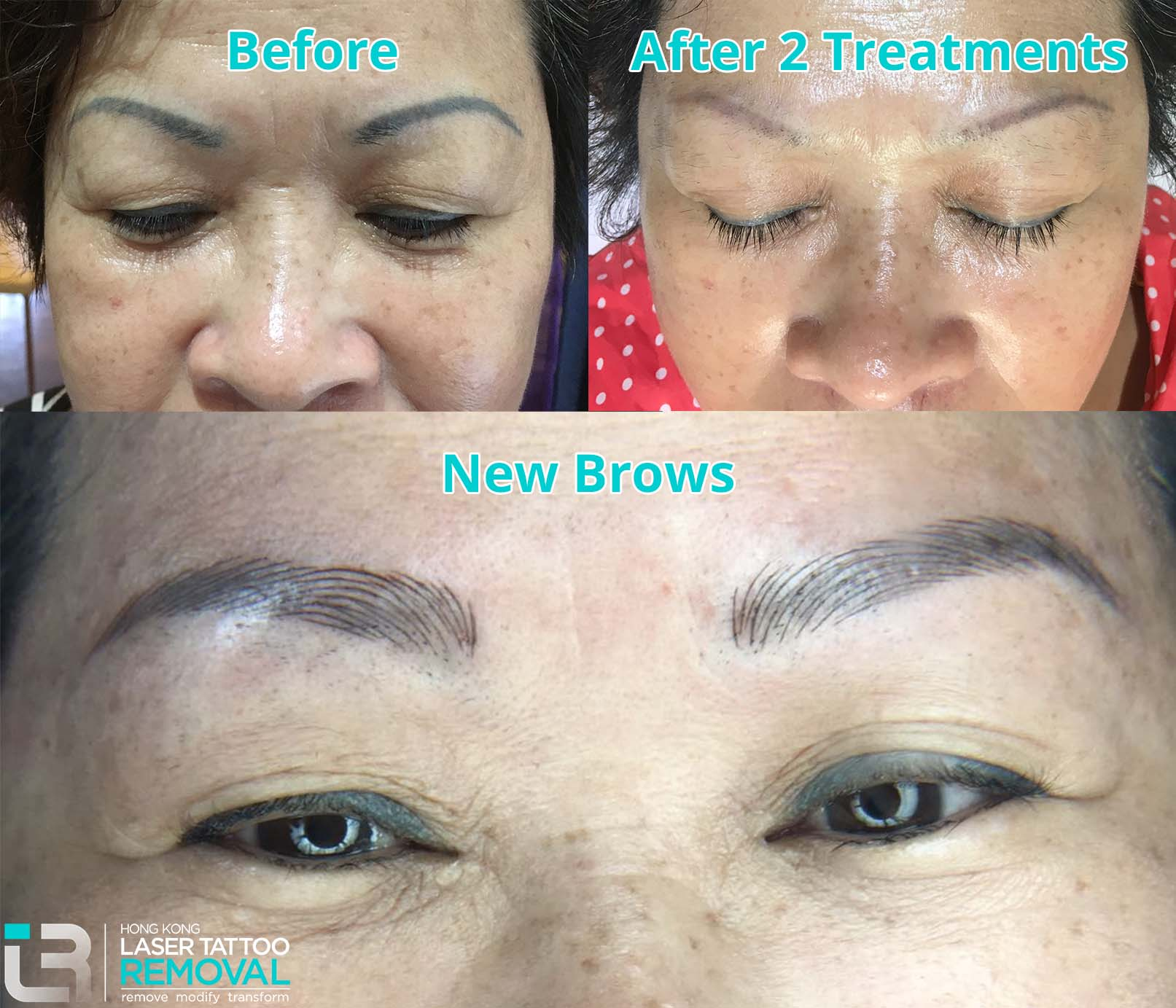 Before and New Brows